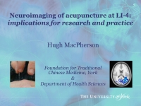 Neuroimaging the response to acupuncture at LI-4 (Hegu): Implications for research and clinical practice - Hugh MacPherson